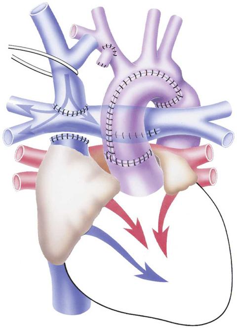 Dhzb Glenn Operation Superior Bidirectional Cavopulmonary Anastomosis