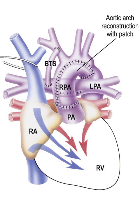 Dhzb  Hypoplastic Left Heart Syndrome